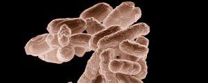 koliformní bakterie